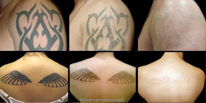 Laser Removal - Lark Tattoo - Lark Tattoo