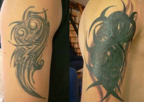 bad-cover-up-tattoo-for-removal