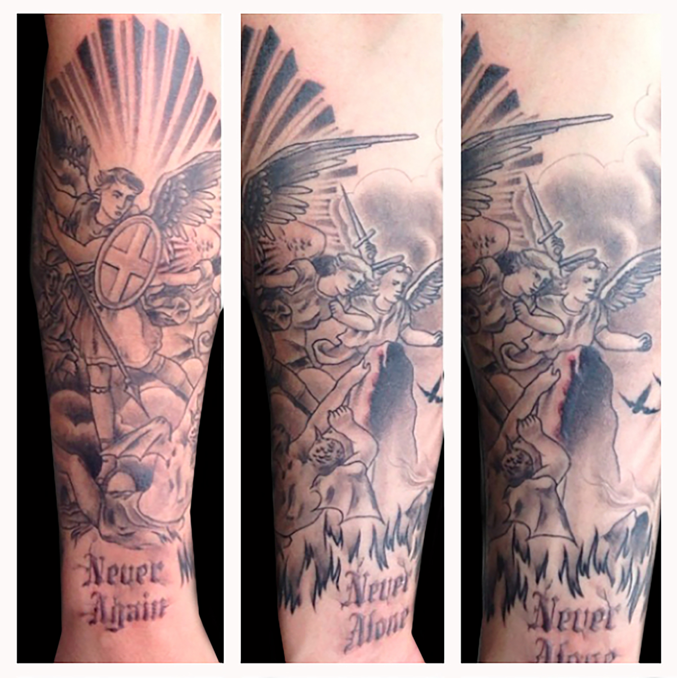 Tattoo Removal Albany Ny - die Bilder coleection